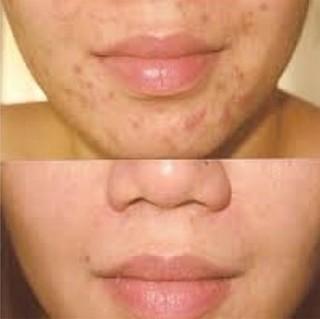 hydrafacial acne treatment