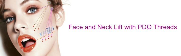 face and neck lift with pdo threads